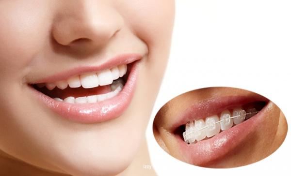 Imagini pentru aparat dentar zambet